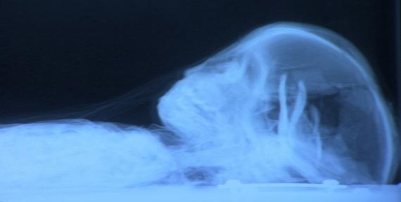 Mummy X-ray